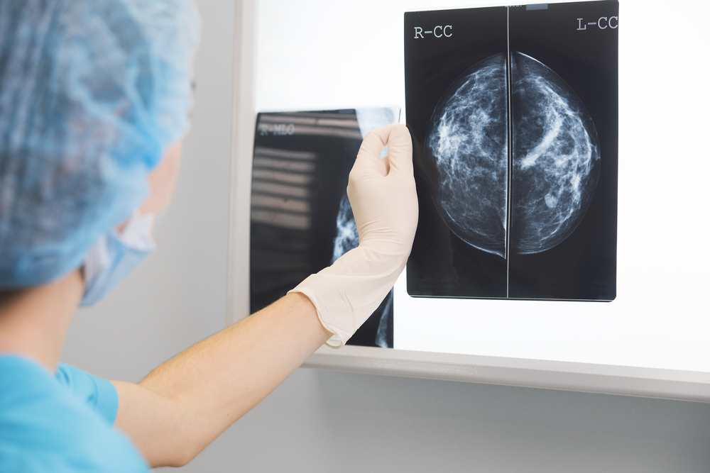 It's time to stop putting off a mammogram