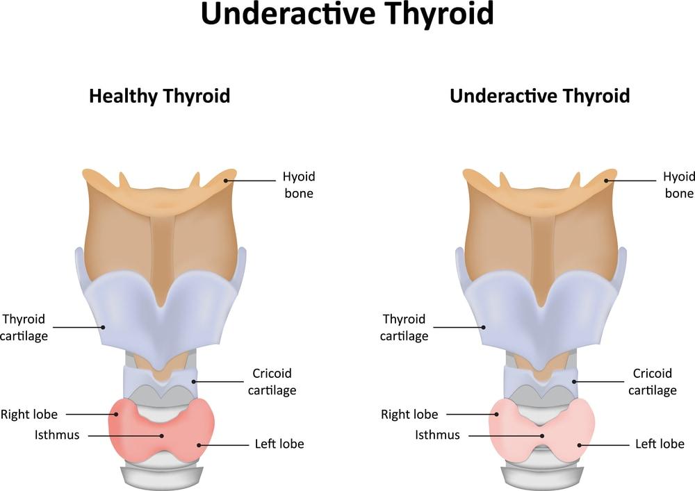 Healthy Thyroid vs Underactive Thyroid